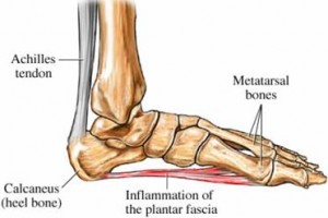 Plantar Fasciitis Now Treatable By Steroids