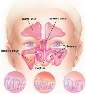 Steroid Nasal Wash Provides Short-Term Relief For Sinusitis