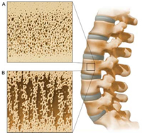 Steroids Cure Osteoporosis