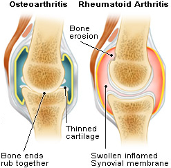STEROIDS EFFECTIVE IN RHEUMATOID ARTHRITIS