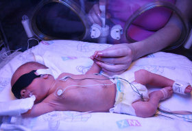 Steroids Reduce Mortality Rate Of Premature Babies
