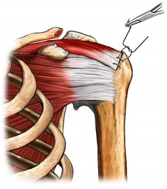 Shoulder Supraspinatus Tendon Tear Repair