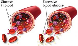 Glucocorticoids Trigger Diabetes And Hypertension