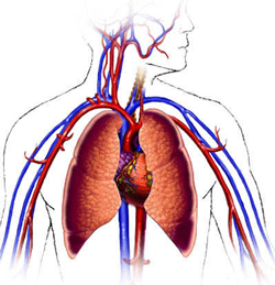 High Dose Of Steroids Linked To Cardiovascular Disease
