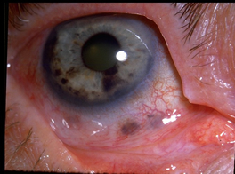 steroid implant eye uveitis
