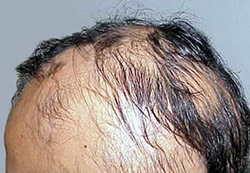 Steroid-Based Therapy Induce Hair Growth