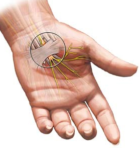 Steroid Injection Treats Carpel Tunnel Syndrome