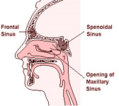 Steroid Nasal Wash effective for treating chronic sinusitis