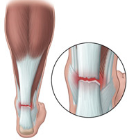 Tendon Tissues Feel Injured When Injected With Steroids