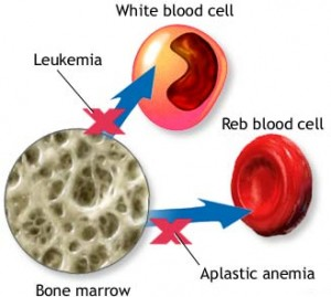 Trials for Low-dose Steroid Treatment prove effective for Bone Marrow Cancer