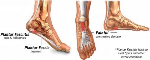 A Final Relief from Plantar Fasciitis