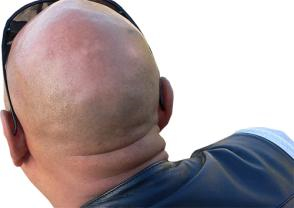 Anabolic Steroids Have Caused Alarming Increase Of Premature Baldness