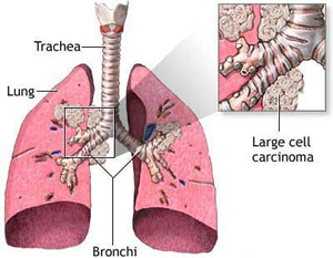Inhaled Corticosteroids Reduce The Risk Of Lung Cancer