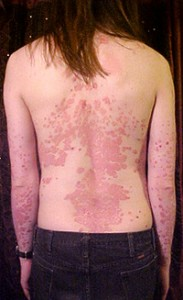 Short-Term Use Of Topical Corticosteroids Offer Relief To Psoriasis Patients
