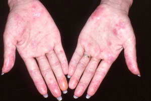 Steroid Use Remains Constant In Lupus Treatment