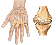 a study of juvenile rheumatoid arthritis jra Juvenile rheumatoid arthritis (jra), also known as juvenile idiopathic arthritis (jia), is the most common chronic rheumatologic disease in children and is one of the most common chronic diseases of childhood it represents a group of disorders that share the clinical manifestation of chronic joint.