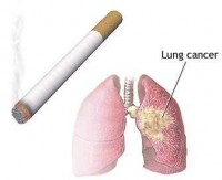 Resistance of smoker's lung to Steroid Treatment methodologies