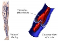 Hormone therapy for women with venous thrombosis