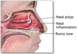 Steroid Nasal spray and antibiotic therapy effective for acute sinusitis