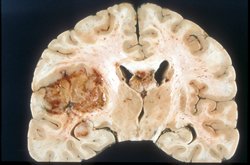 Survival rate increased with Avastin in recurrent glioblastoma affected patients