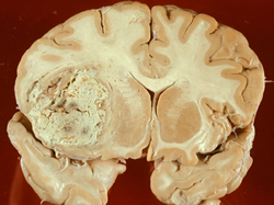 Avastin improves survival rates in patients affected by recurrent glioblastoma