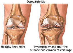 Osteoarthritis can be effectively treated with PTH therapy