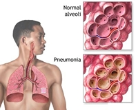 Pneumonia patients can expect relief with steroids