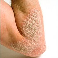 Short-term application of topical corticosteroids can help acute psoriasis patients