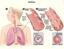 Telithromycin can effectively treat acute asthma attacks