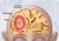 Brain tumor progression in recurrent disease can be delayed by Avastin
