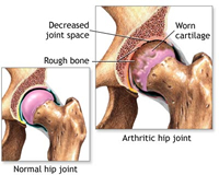 Hormone holds potential of keeping joint injuries from causing long-term Osteoarthritis