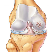 Hormone holds promise for preventing joint injuries from resulting in osteoarthritis
