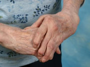 Arthritis medications and herbal remedies can be a lethal combination