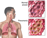 Fast recovery from Pneumonia with steroids