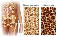 HIV patients are easy victims of osteoporosis