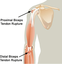 Latest surgical techniques and intervention can benefit people with Biceps Injury