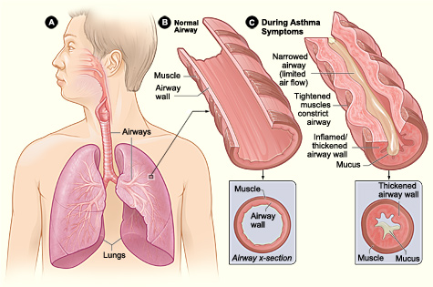 acute-asthma-symptoms-can-be-tackled-by-antibiotic