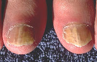 New evidence suggest light therapy useful against fungal infections