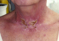 Preemptive treatment helps in preventing skin toxicity with Panitumumab