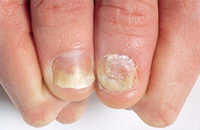 Psoriasis associated with severe cardiovascular condition and diabetes