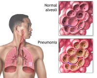 Risk of pneumonia can increase dramatically with inhaled corticosteroids