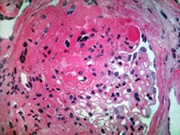 Antidiabetes drug shows potential to treat focal segmental glomerulosclerosis