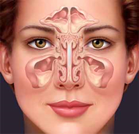 Asthma patients are easy victims of nasal polyposis, nasal congestion, and olfactory disturbances