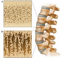 Alendronate less effective than Teriparatide for steroid-induced osteoporosis