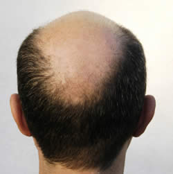 Genes do not significantly influence hair loss