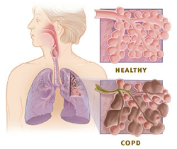 Inhaled corticosteroids helpful for COPD patients