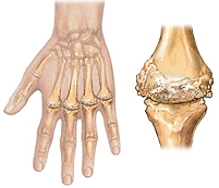 Joint damage from rheumatoid arthritis reduced by low steroid doses