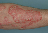 Topical steroids beneficial for acute psoriasis patients