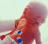 Treatment for prematurity with steroids put to the test