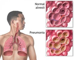Morbidity and mortality of severe bacterial pneumonia reduced by steroids